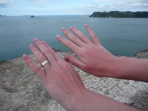 Sunburn_on_hands_after_a_day_at_Hot_Water_Beach_New_Zealand-12Dec2008-300x225