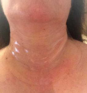 Neck Wrinkles Treatment