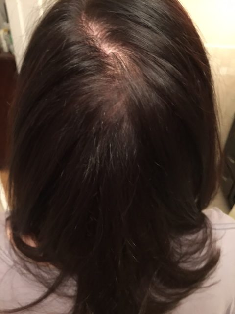 Before using iRestore Hair Growth System